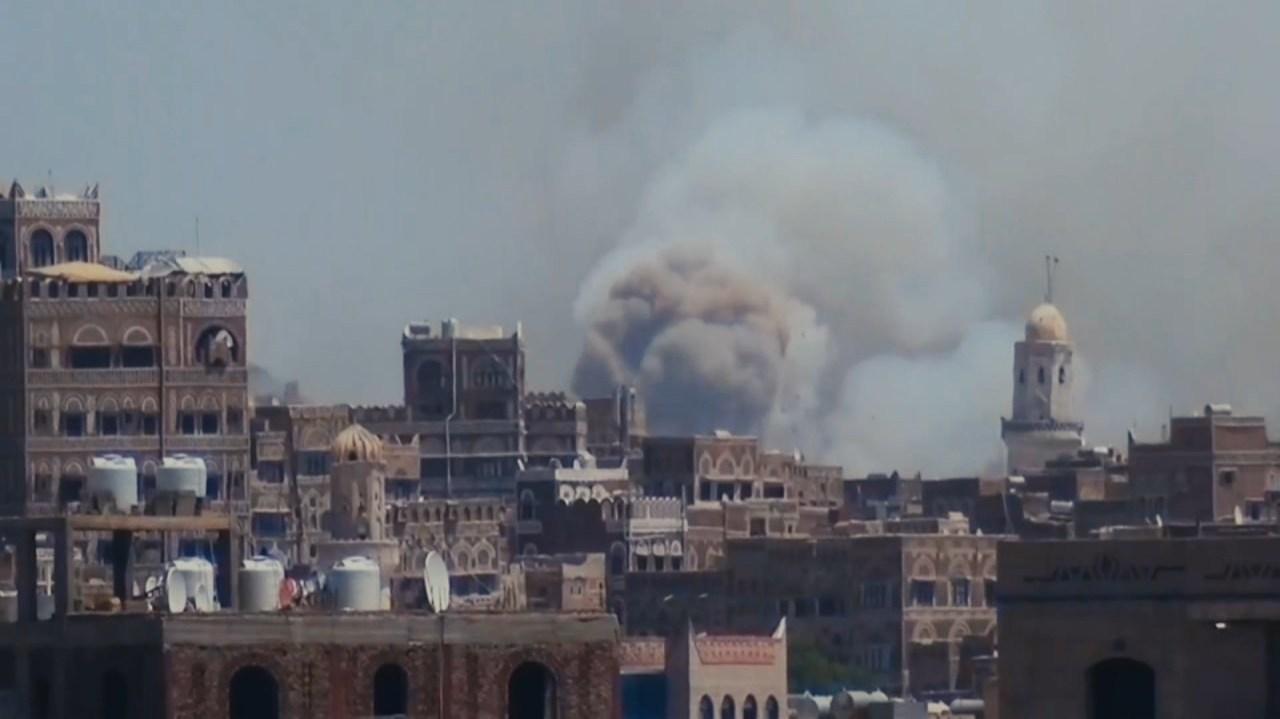 S8 E7: Yemens War Kids / Joint Custody